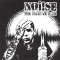 "NOi!SE ""The Scars We Hide"" (Reissue) Digital Download"